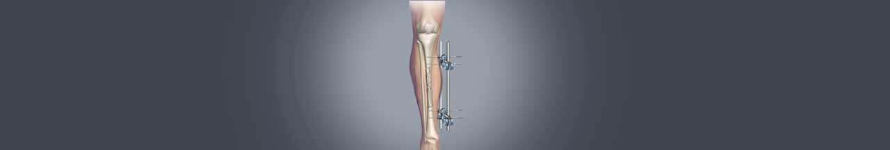 Limb lengthening surgery in India banner