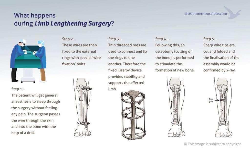 An infographic explaining ilizarov fixation procedure